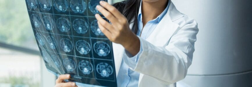 Doctor Looking at Neuroimaging