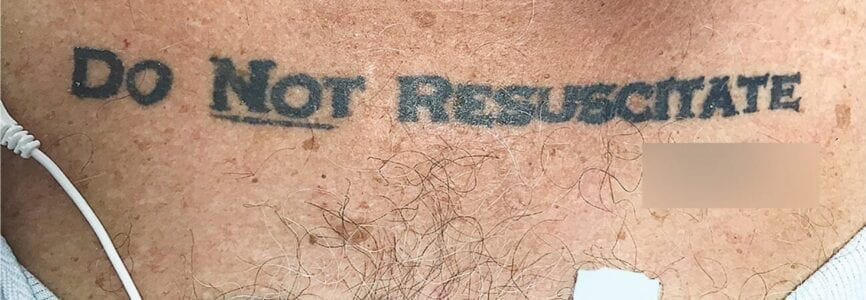 """Illustrative image for Nancy Berlinger in The Atlantic on Patient's """"DNR"""" Tattoo"""